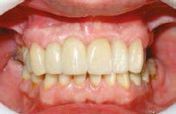 d298f05a7b73e O objetivo da Odontologia moderna é restabelecer o paciente com contorno,  função, estética, conforto, fonação e saúde normais. O que torna a  implantodontia ...